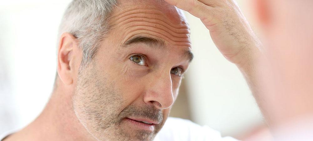 男性型脱毛症
