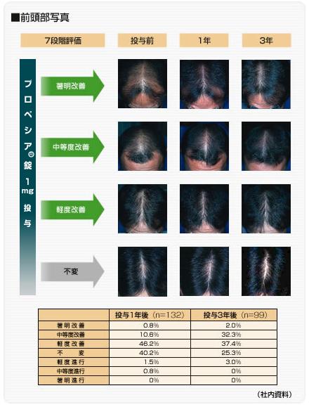 臨床試験データ