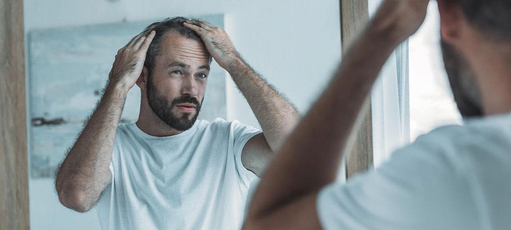 毛髪改善の種類