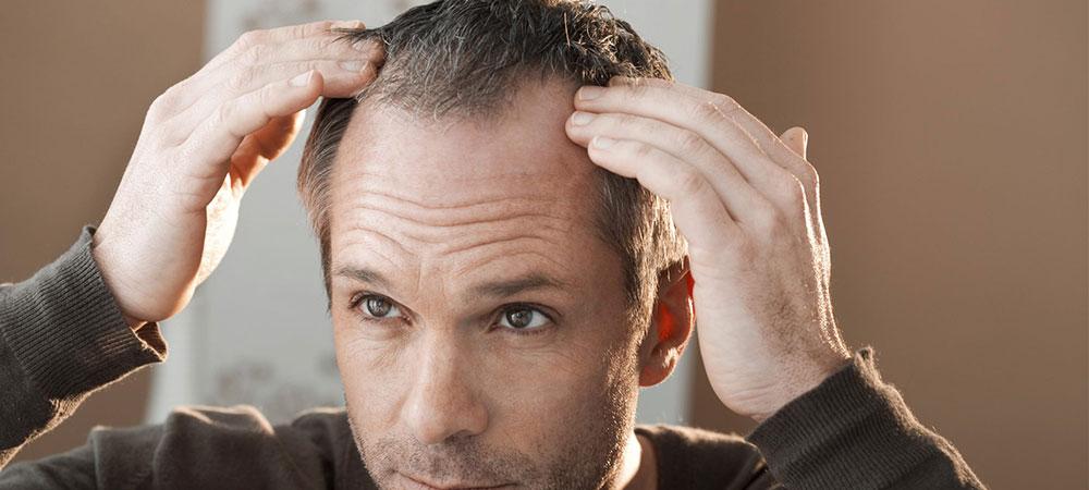 AGA治療と初期脱毛