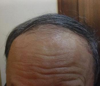 63歳男性