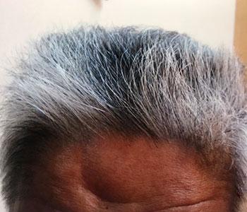 65歳男性